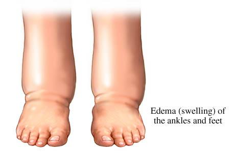 Edema - Swelling of Ankle