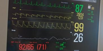 Advance Heart Failure Treatment - Apex Heart Clinic